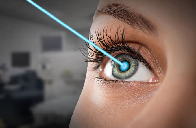 Helpful Guide To Astigmatism and LASIK Surgery
